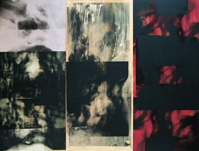 Strahlenbild Triptychon