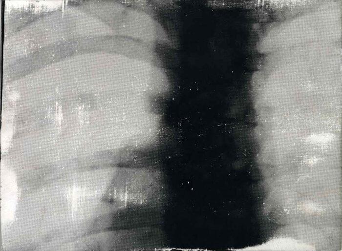 Mein erster Siebdruck eines radiologischen Motivs